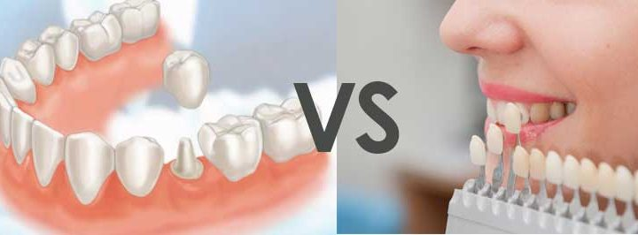 crown-vs-veneer