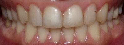 veneer-case1-before