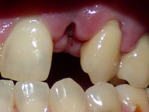Tooth Extraction Post Operative Care