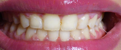 orthodontic-case1-after