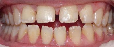 orthodontic-case1-before