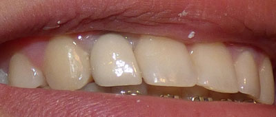 orthodontic-case2-after