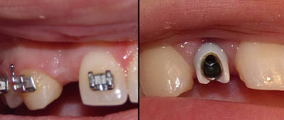orthodontic-case2-before