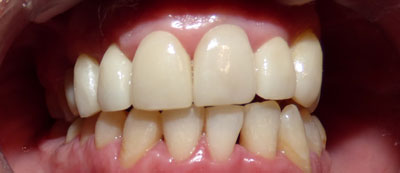 orthodontic-case3-after