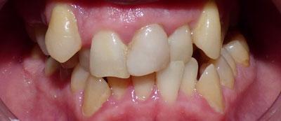 orthodontic-case3-before